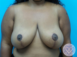 LipoLift®/Breast Reduction/Breast Lift