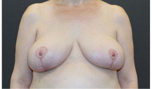 LipoLift®/Breast Reduction/Breast Lift