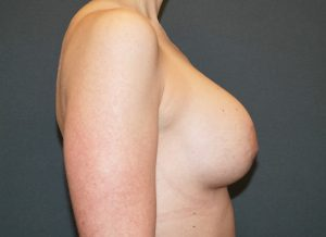 Revision Breast Augmentation