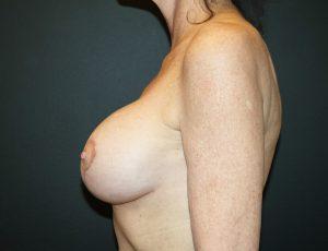 Revision Breast Augmentation