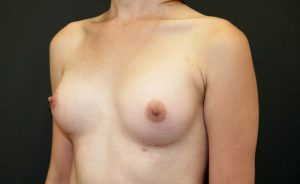 Male to Female Top Surgery