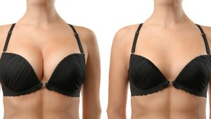 Read more about the article Breast Reduction Surgery And Pregnancy
