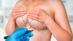 Read more about the article Breast Lift with Implants v. Breast Lift Without Implants