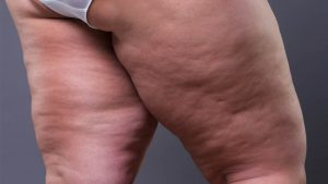 Read more about the article Diagnosing Lipedema:  Are Doctors Misdirected or Simply Disinterested?