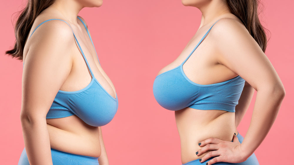 Read more about the article Uplifting Treatment Options for Tuberous Breasts
